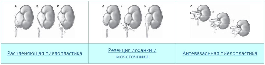 Эписпадия
